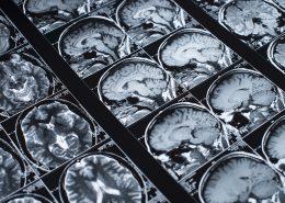 Cerenovus Johnson & Johnson Medical Devices Companies global leader in neurovascular care